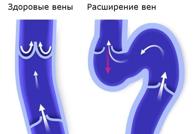 Ангионорм улучшает состояние вен