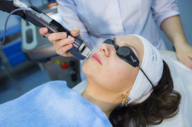 Лечение купероза кожи лазером