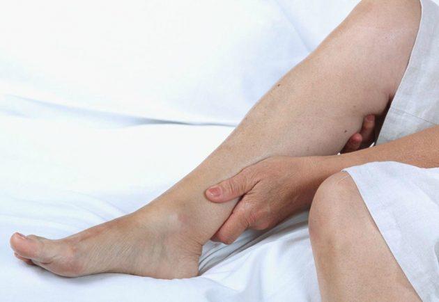 Опухание ног - один из признаков посттромботической болезни