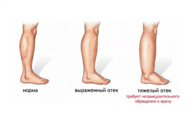 Отеки - самое распространенное осложнение варикоза