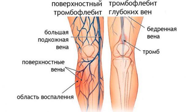 Тромбофлебит - одно из осложнений варикоза