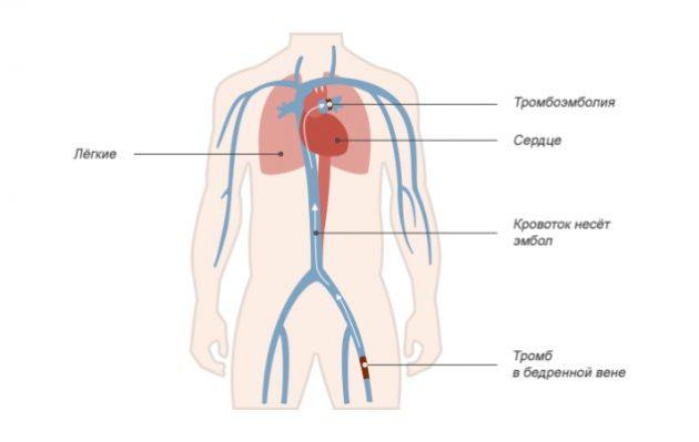 Тромбоэмболия легочной артерии - опасное для жизни осложенение варикоза