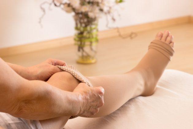 В лечении варикоза народными средствами используется компрессионное белье