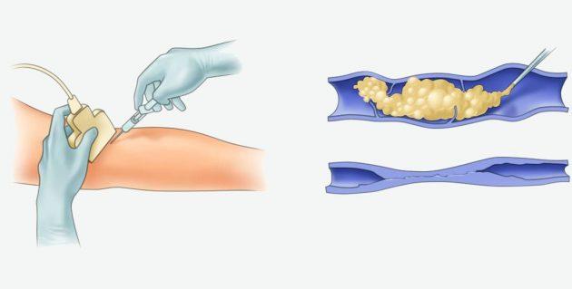 Как выглядит эхосклеротерапия