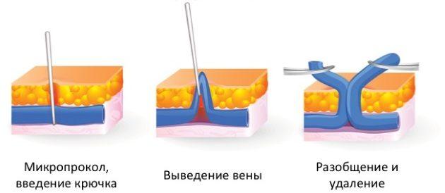 минифлебэктомия - один из способов хирургического лечения варикоза