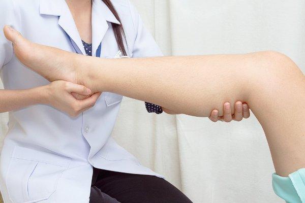 при возникновении венозных отеков нужно обратиться к терапевту
