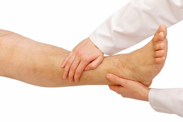 отек ноги ниже колена