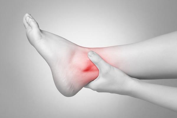 Опухла нога в районе щиколотки с внешней стороны и болит: что делать, как убрать отек?
