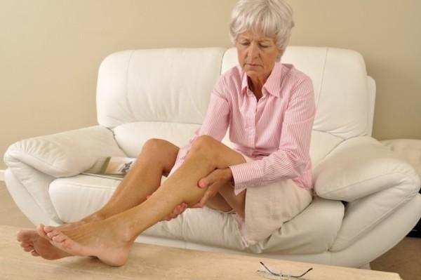 отекают ноги у женщин при варикозе