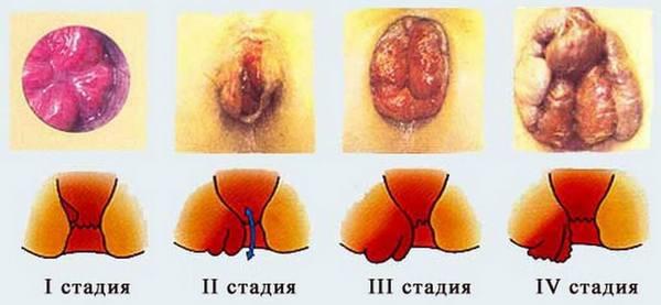 стадии геморроя при беременности