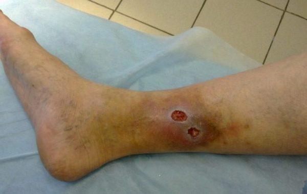 трофическая язва после варикозного дерматита
