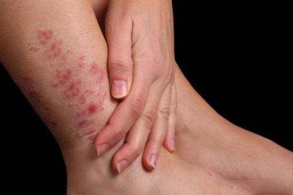 варикозный дерматит2