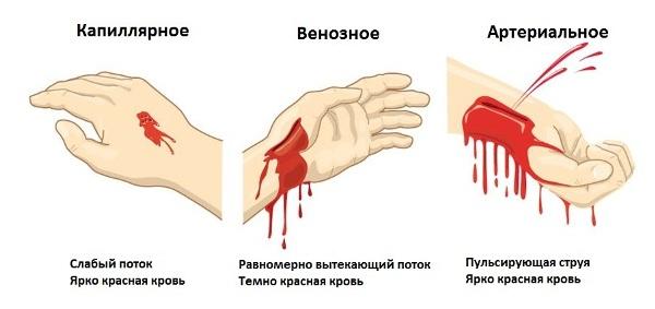 кровотечения артериальной и венозной крови