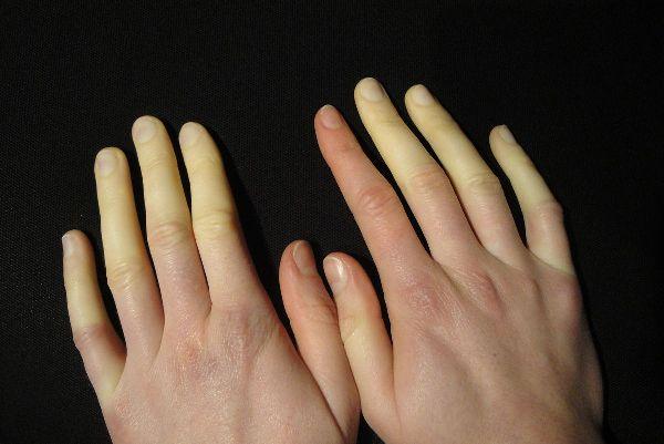болезнь синдром рейно, при которой немеют руки
