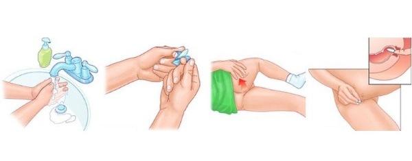как применять глицериновые свечи от геморроя